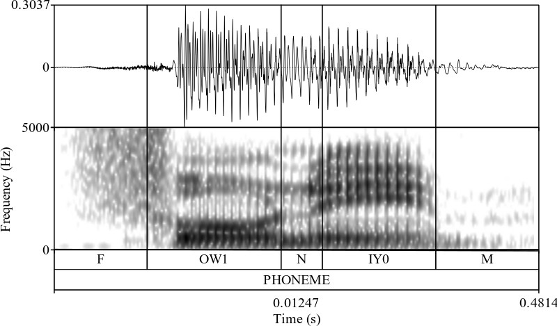 Stacked waveform, spectrogram, and segments with segment boundaries